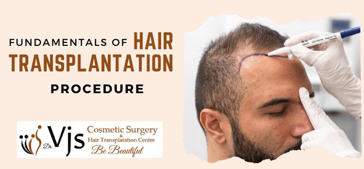 Fundamentals-Of-Hair-Transplantation-Procedure-